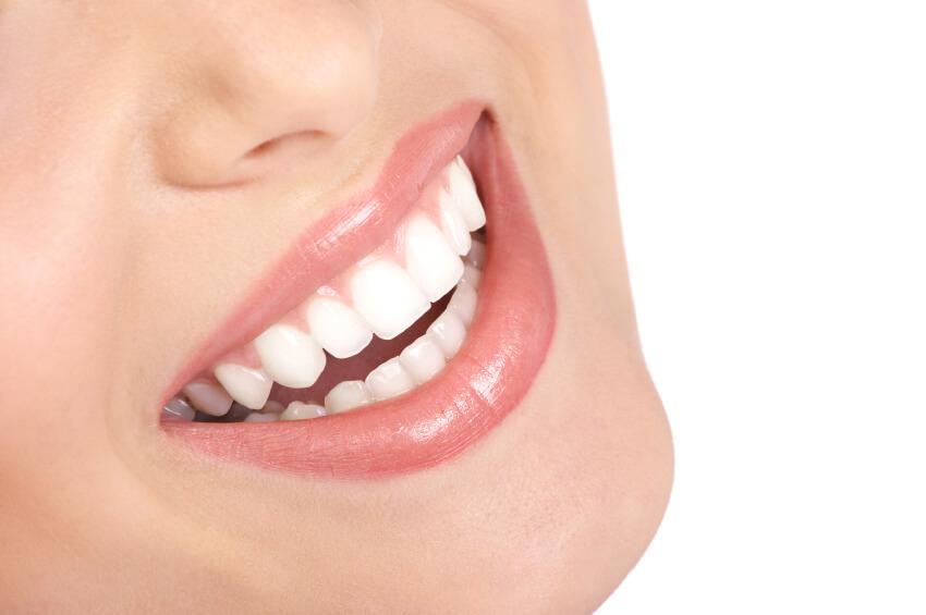 take-home teeth whitening